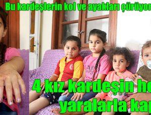 4 kız kardeşin her yeri yaralarla kaplı